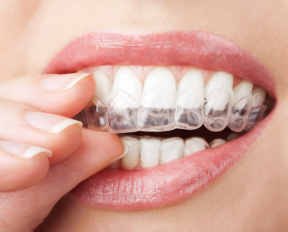 Essential Dental Golden Grove Invisalign teeth straightening