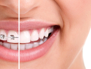 Essential Dental Golden Grove braces vs Invisalign