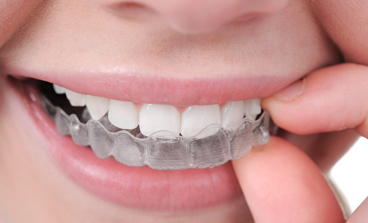 Essential-Dental-Golden-Grove-braces-vs-invisalign-comparison