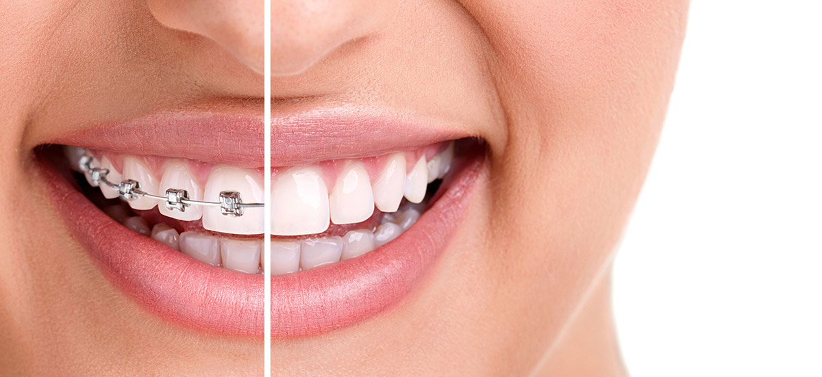Essential Dental Golden Grove braces vs Invisalign