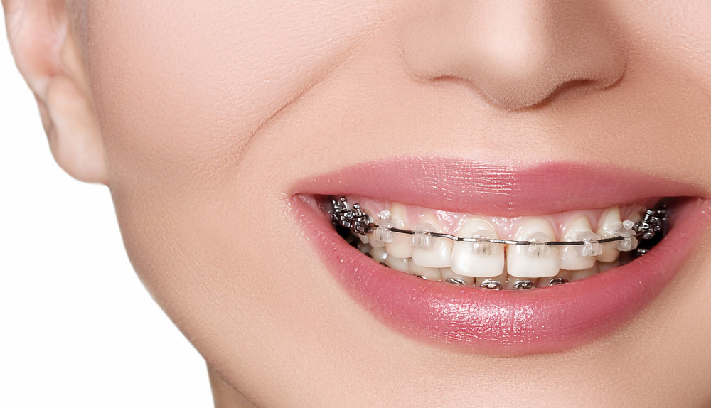 Essential-Dental-Golden-Grove-girl-with-braces