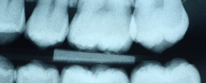 Essential Dental - X-rays provide a comprehensive assessment of your teeth